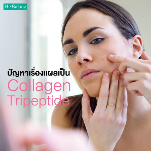 ปัญหาเรื่องแผลเป็น คอลลาเจน ไตรเปปไทด์ (Collagen Tripeptide) ช่วยได้